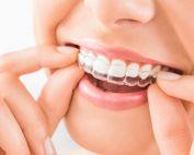 Zahnarztpraxis Matthias Krecker - Kieferorthopädie