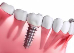 Zahnarztpraxis Matthias Krecker - Zahnimplantat