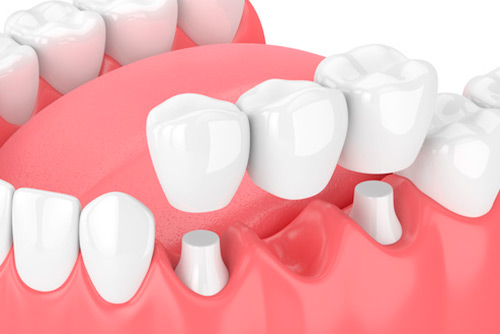 Zahnarztpraxis Matthias Krecker - Zahnersatz